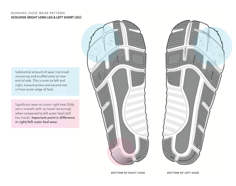 supination gait pattern on running shoes